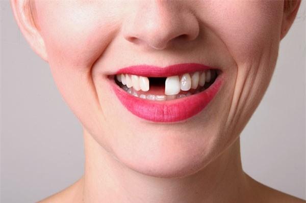 mơ thấy rụng răng